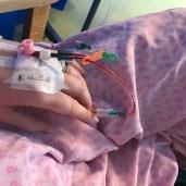 Claire McFerran Hyperemesis Sufferer